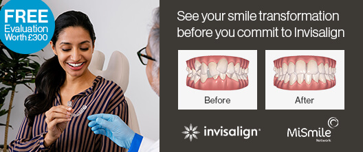 smile transformation invisalign