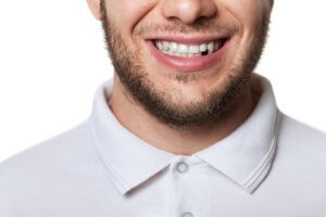 Man smiling front bottom part tooth missing