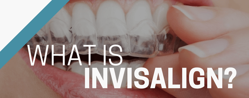 invisalign treatment in bath