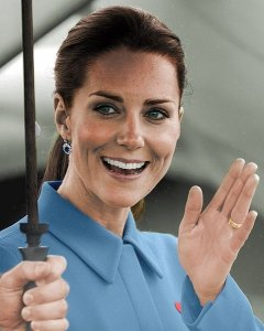 kate middleton invisalign results