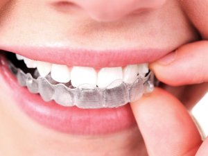 Invisalign aligners on teeth