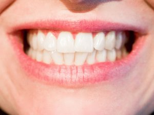 Natural Teeth with Dental Implants